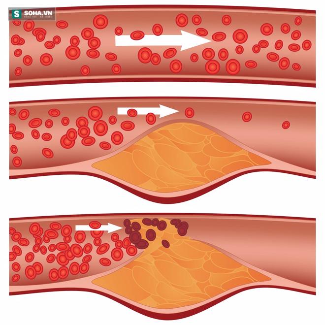 6 thực phẩm đặc trị dành cho người sợ bệnh tắc nghẽn mạch máu - Ảnh 2.