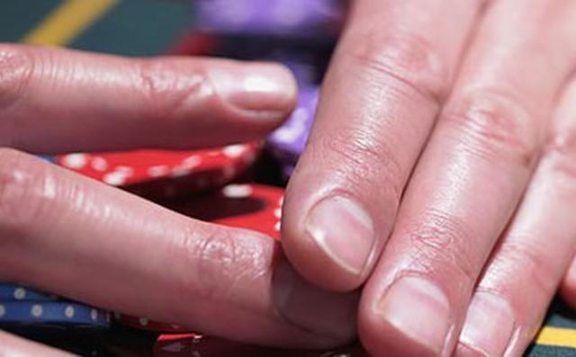 Móng tay tiết lộ những dấu hiệu về sức khỏe của bạn