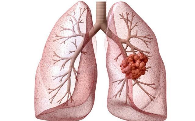 """Ung thư phổi gây tử vong số 1: Những dấu hiệu cảnh báo sớm tuyệt đối không nên """"lờ đi"""""""
