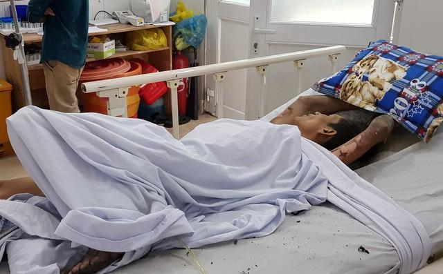 Cảnh sát bị thương khi khống chế thanh niên nghi ngáo đá nhốt bạn gái, đốt phòng trọ ở Sài Gòn 1