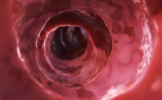5 dấu hiệu điển hình cảnh báo khối u ung thư đại trực tràng đang phát triển