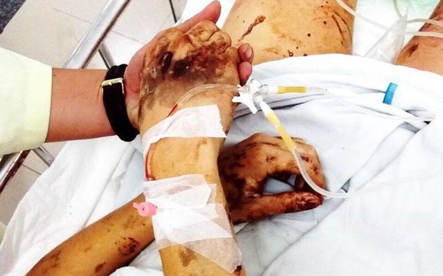 Vụ Việt kiều bị tạt axit, cắt gân chân: Hai người đàn ông đè người Tom xuống và cắt 3 nhát