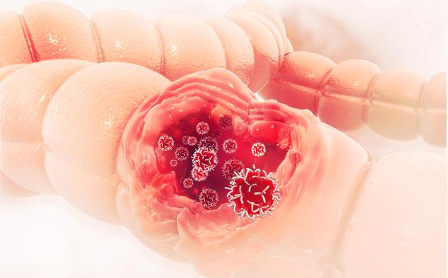 5 việc làm để ngăn chặn nguy cơ mắc ung thư trực tràng: Đừng để mầm bệnh lớn rồi mới biết