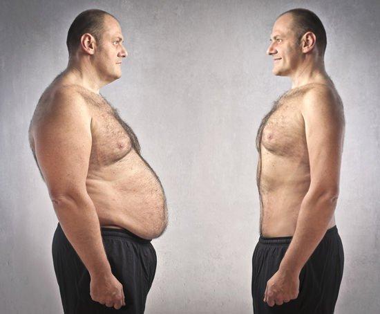Một tác hại mới xuất hiện khiến người béo phì chỉ muốn giảm cân ngay lập tức - Ảnh 2.