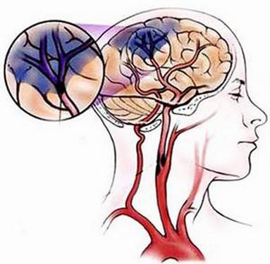 Làm sao biết bị thiếu máu não? - Ảnh 1.