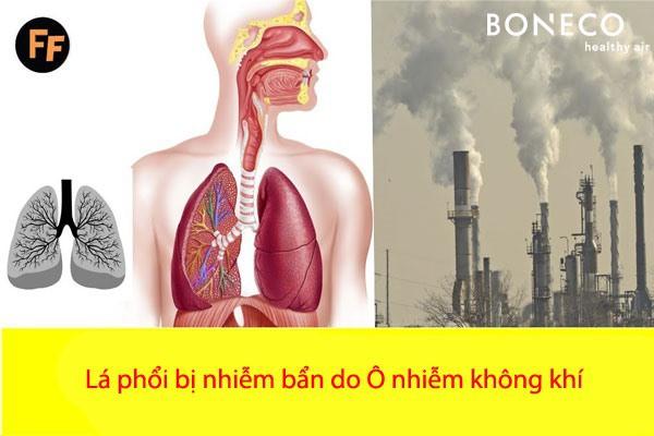 Số người mắc bệnh hô hấp tử vong vì ô nhiễm không khí nhiều mức nào? - Ảnh 1.