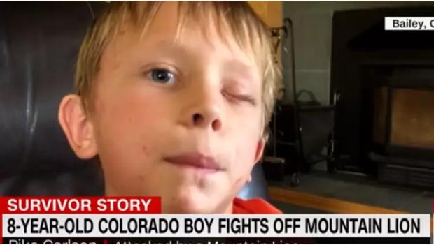 Sống sót thần kỳ sau khi bị báo sư tử tấn công, cậu bé 8 tuổi chia sẻ cách tự vệ khiến ai nấy đều bất ngờ - Ảnh 1.