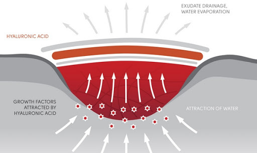 Đột phá: Các nhà khoa học phát minh ra loại gel có thể hàn gắn mọi vết thương trên cơ thể và trong cả nội tạng - Ảnh 4.