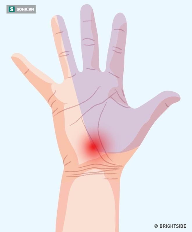 3 dấu hiệu bất thường ở tay chân: 80% khả năng bạn bị tắc mạch máu, nên xử lý ngay - Ảnh 4.